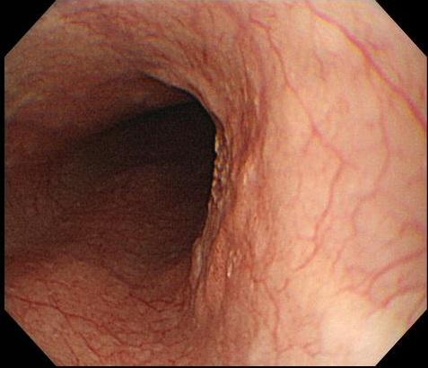 胃がん 初期 症状 ブログ スキルス