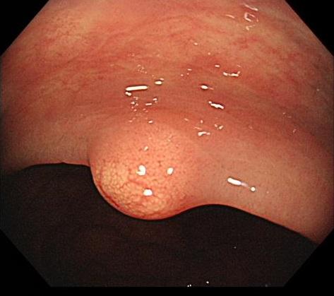 直腸カルチノイド (1)