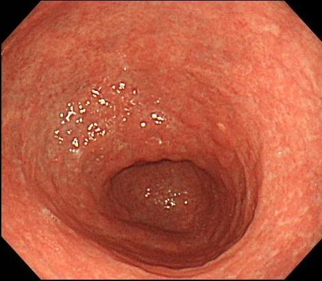萎縮性胃炎